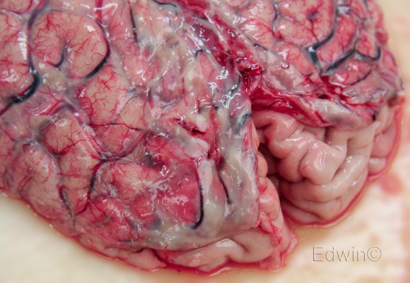 Лобные доли гол. мозга сверху