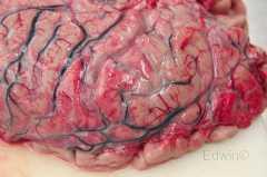 Мягкая мозговая оболочка в области лобных долей