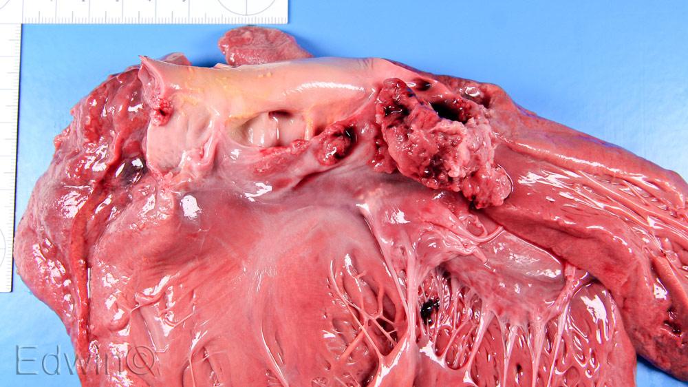 Эндокардит аортального клапана.