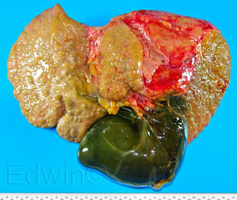 Цирроз печени. Переполненный желчный пузырь.