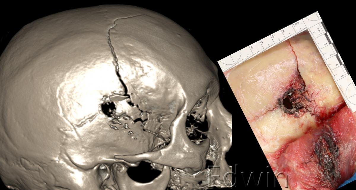 Входная огнестрельная рана при полном упоре на своде черепа.