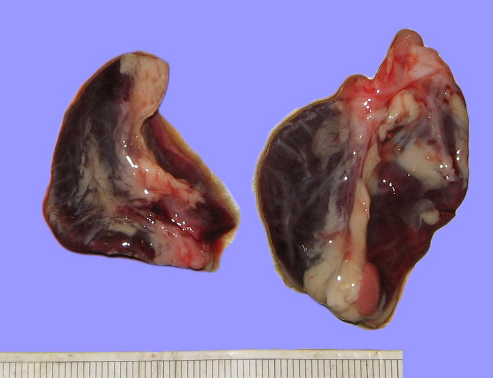 Надпочечники при синдроме Уотерхауса-Фридериксена