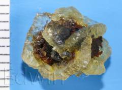 Камень желчного пузыря