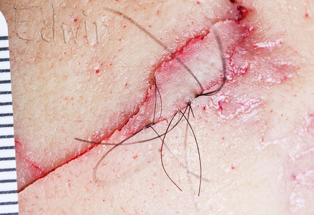 Защип волос в переломе черепа