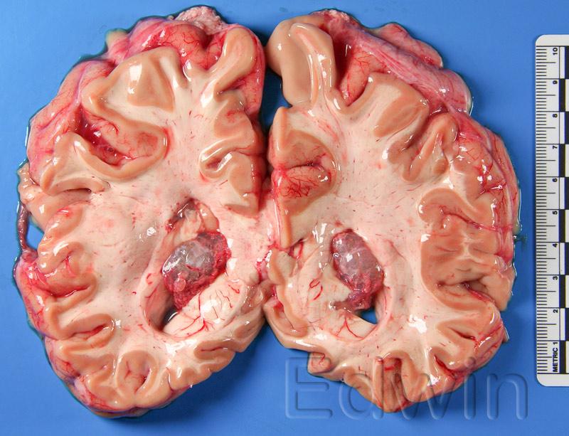 Киста в области сосудистых сплетений обоих боковых желудочков гол. мозга.