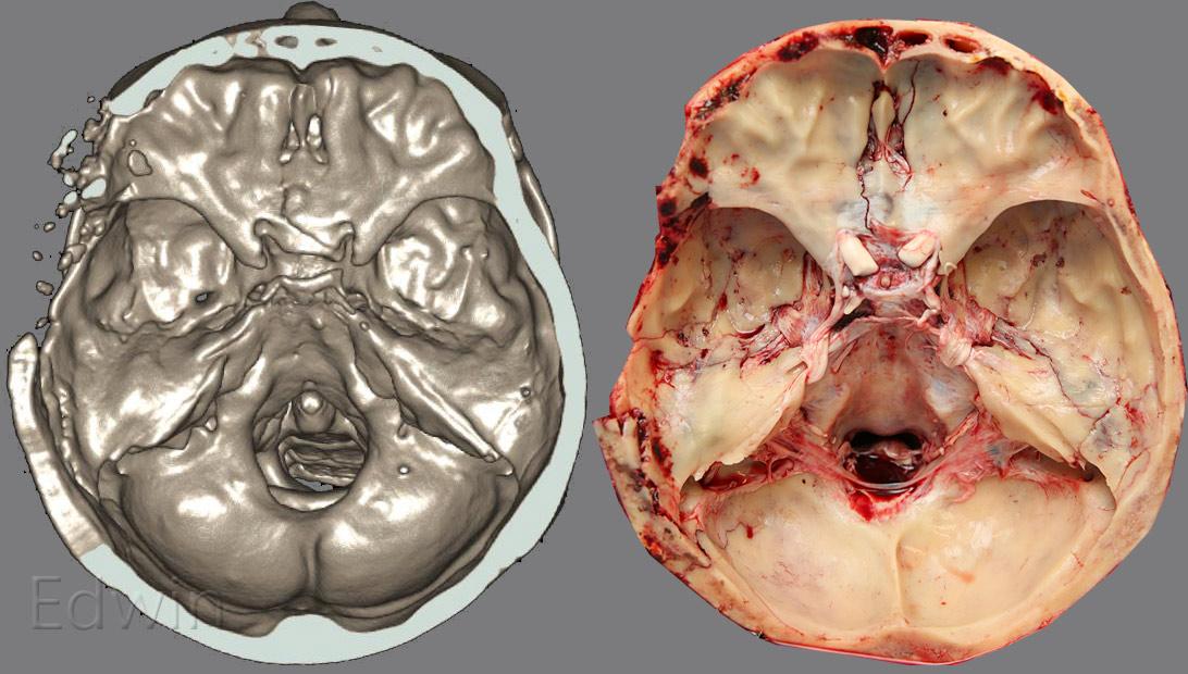 Сравнение находок на вскрытии с компьютерной томограммой основания черепа.