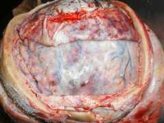 перелом эндопротеза4
