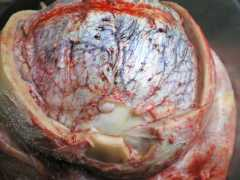 перелом эндопротеза3