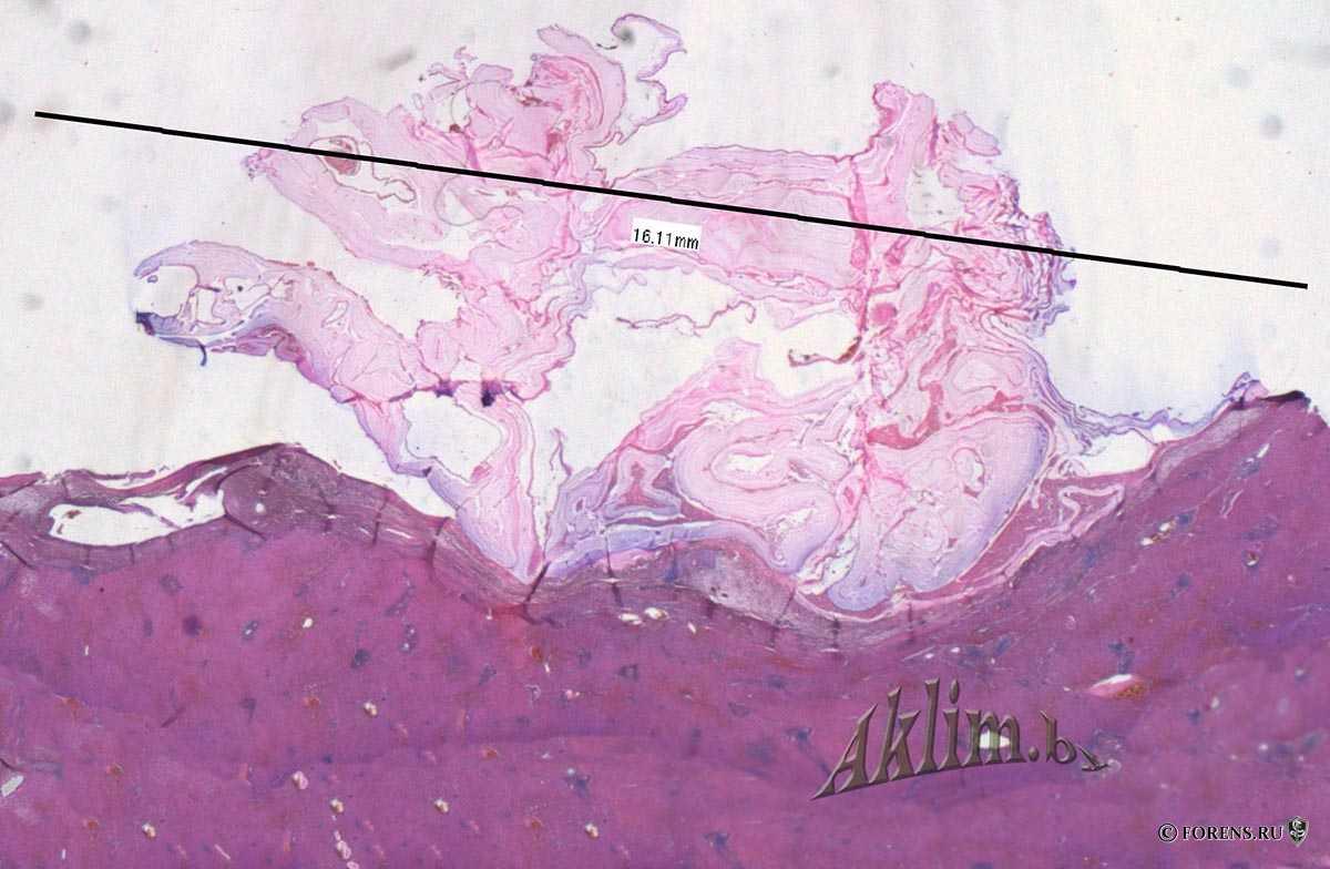 Гидатидозный эхинококкоз печени (микропрепараты)