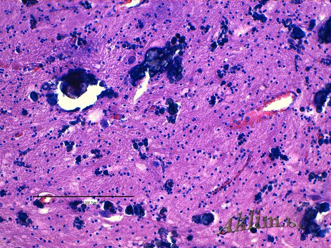 Болезнь Фара. Кальцификаты в стволовом отделе головного мозга