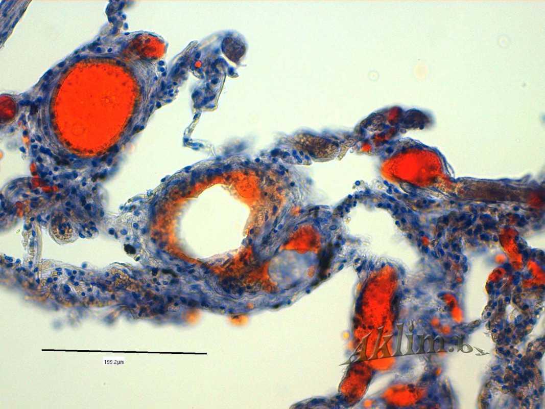 Жировая эмболия сосудов и капилляров легких