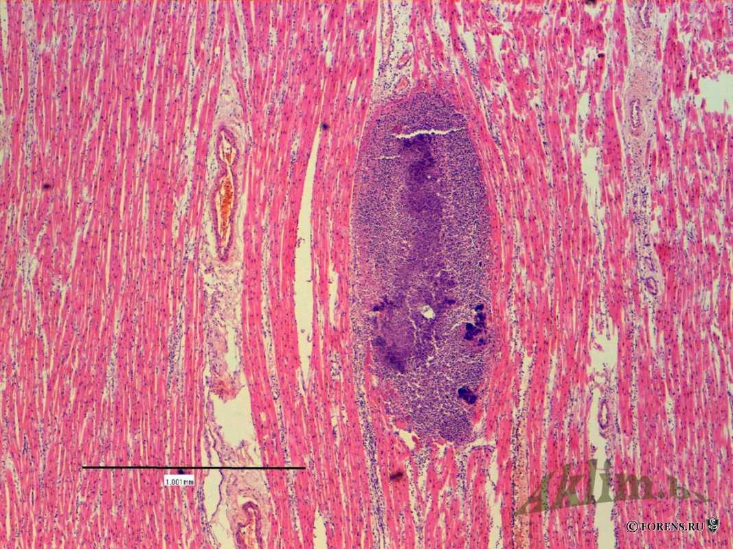 Сердце при септикопиемии