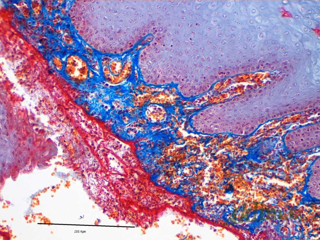 Ушибленная рана губы со стороны слизистой