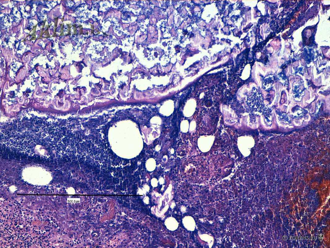 Жировой панкреонекроз