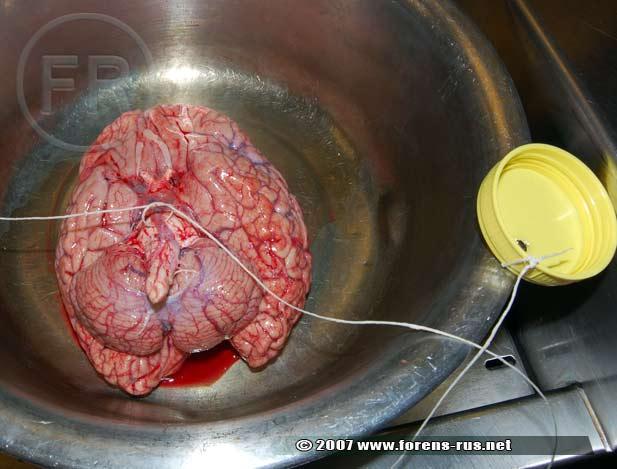 Фиксация головного мозга трупа формалином
