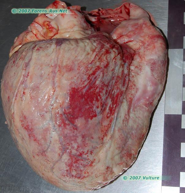 Диссеминированный милиарный туберкулез. Сердце