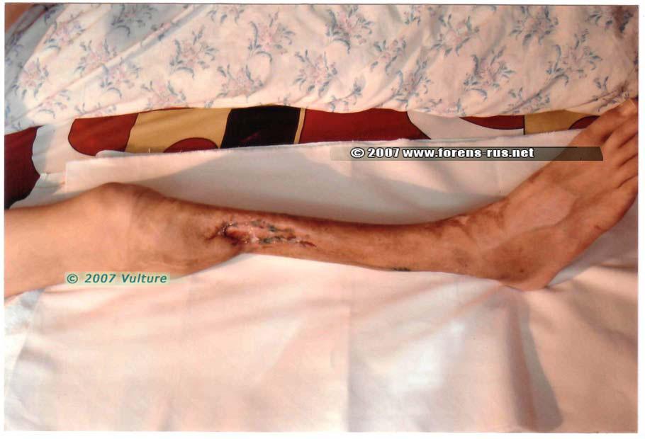 Последствия травмы голени