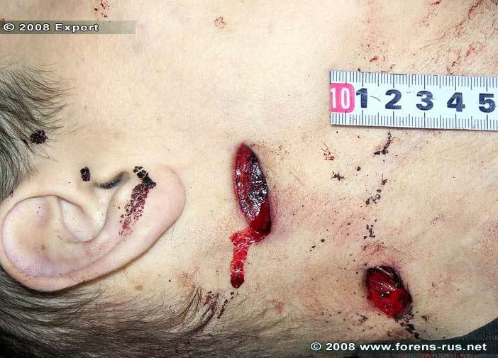 Колото-резаные раны шеи