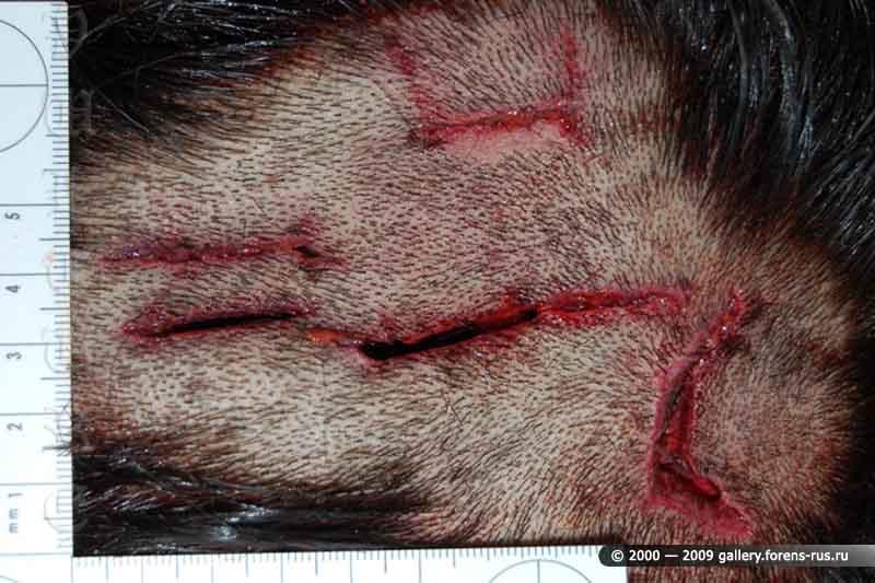 Множественные раны в левой теменной области