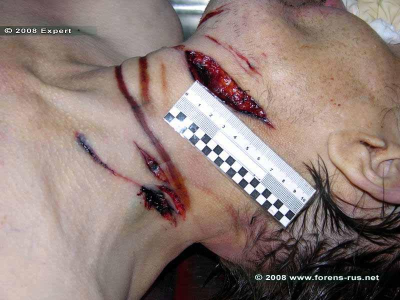 Резаные раны шеи и странгуляционная борозда