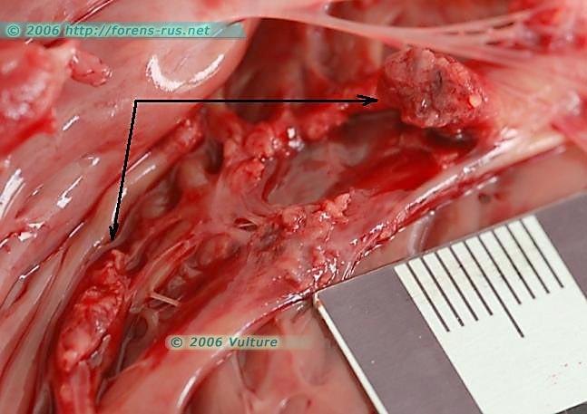Разрыв сосчковой мышцы