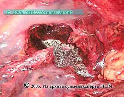 Дефект грудной клетки соответственно ране 1