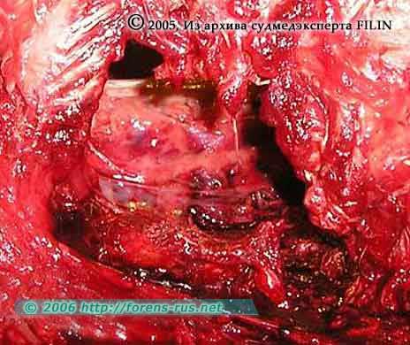 Дефект грудной клетки соответственно ране 2