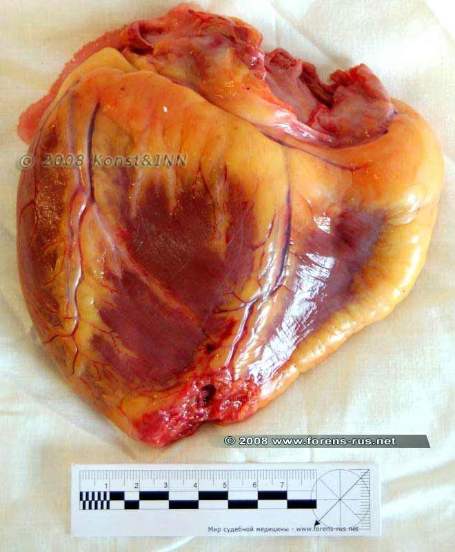 Повреждения сердца