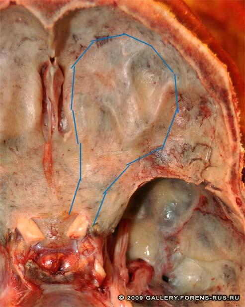 Метод изъятия глазного яблока в комплексе со зрительным нерв