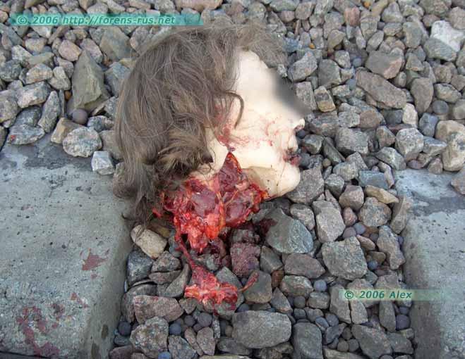 Рельсовая травма (самоубийство)