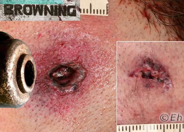 Дульный срез ствола. Входная огнестрельная рана со слабо выраженной штанцмаркой