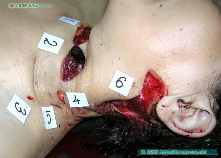 Раны шеи. Убийство