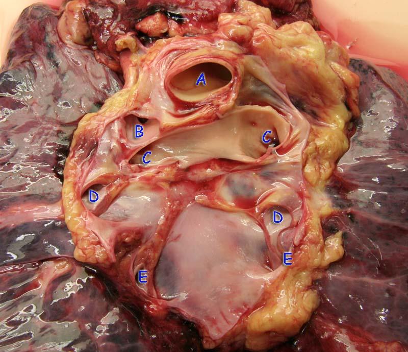 Вид на крупные сосуды на задней поверхности сердечной сумки