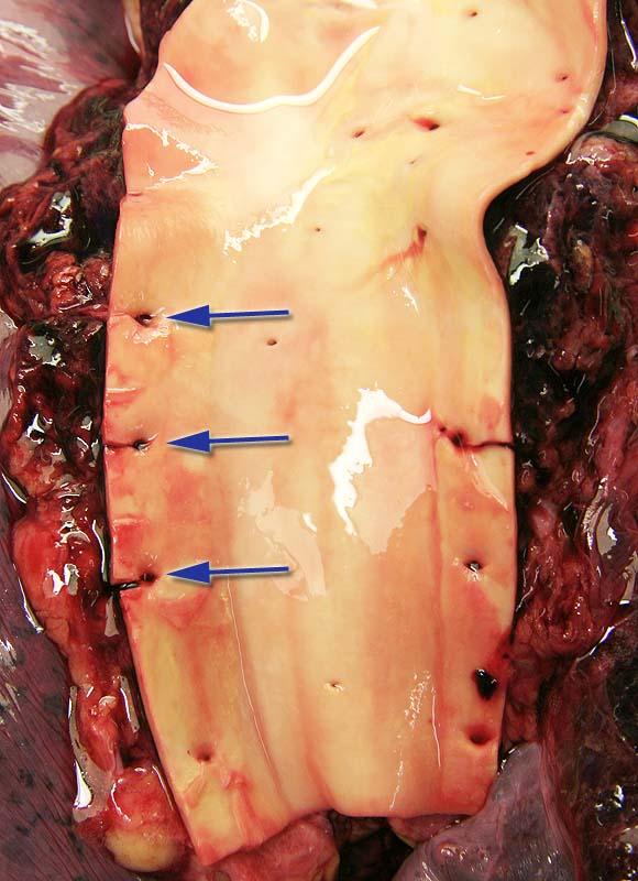Aorta thoracica c частично уже вскрытыми устьями межрёберных артерий