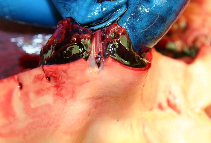 Неполный разрыв первой левой межрёберной артерии
