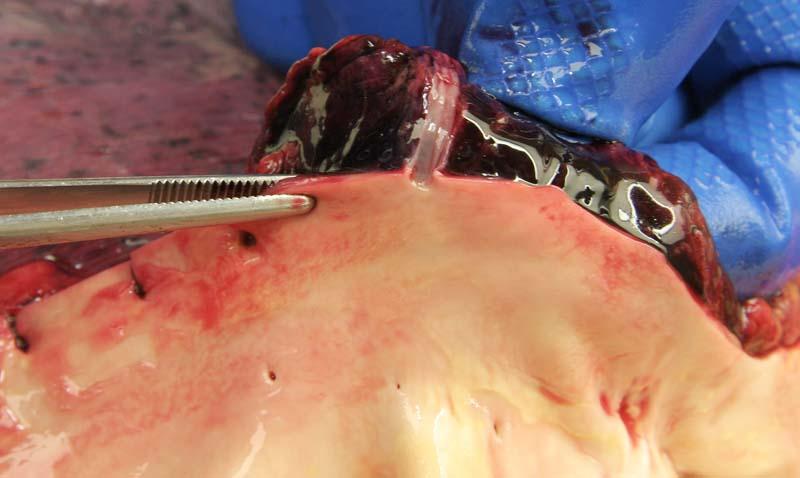 Неповреждённая межрёберная артерия
