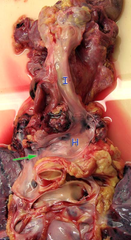 Отпрепарированы вены левой стороны шеи