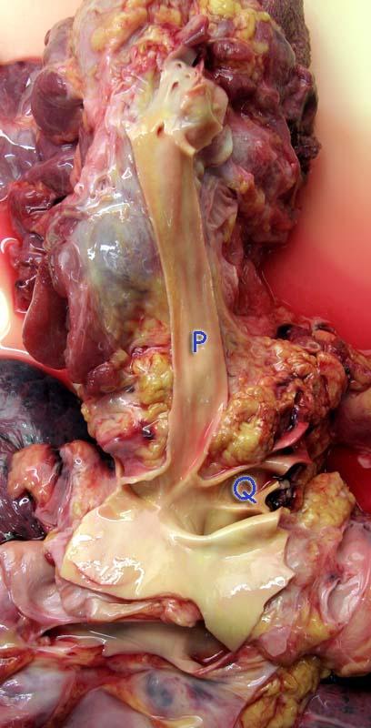 Отпрепарированы крупные артерии левой стороны шеи
