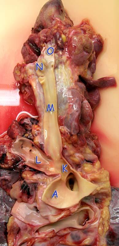 Отпрепарированы крупные артерии правой стороны шеи