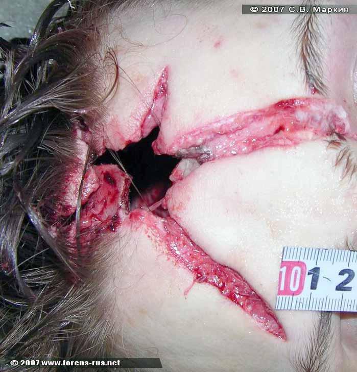 Входная рана в лобной области