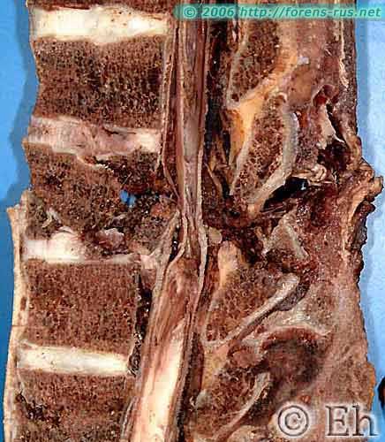 Компрессионный перелом тела 6 грудного позвонка
