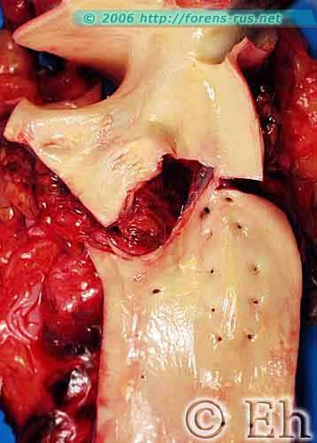 Полный разрыв аорты