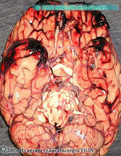 Противоударные очаги ушиба головного мозга