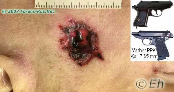 Входная пулевая рана