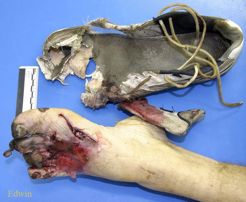 Рельсовая травма ступни