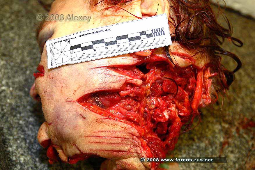 Рубленые раны головы и шеи с отчленением головы