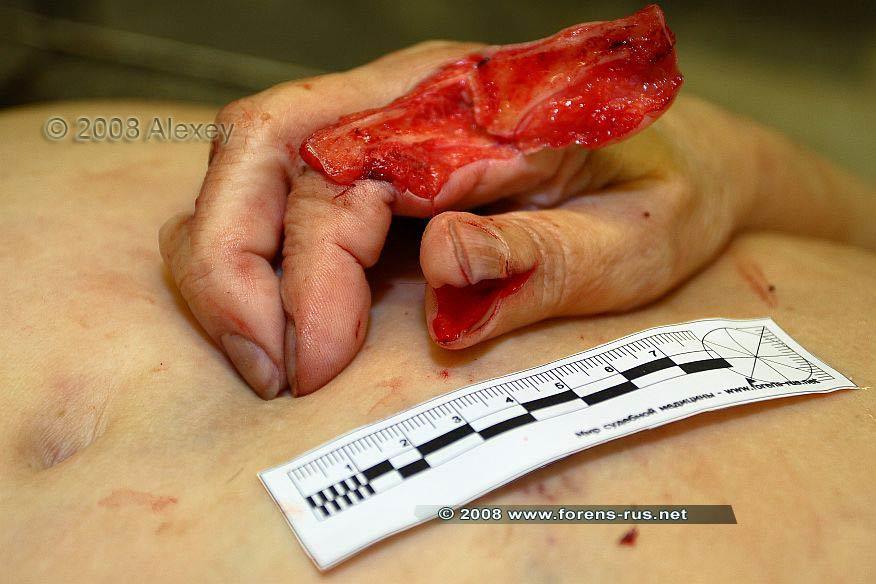 Рубленые раны кисти