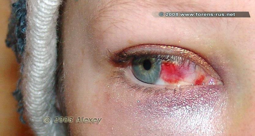 Кровоизлияния в белочную оболочку глаза
