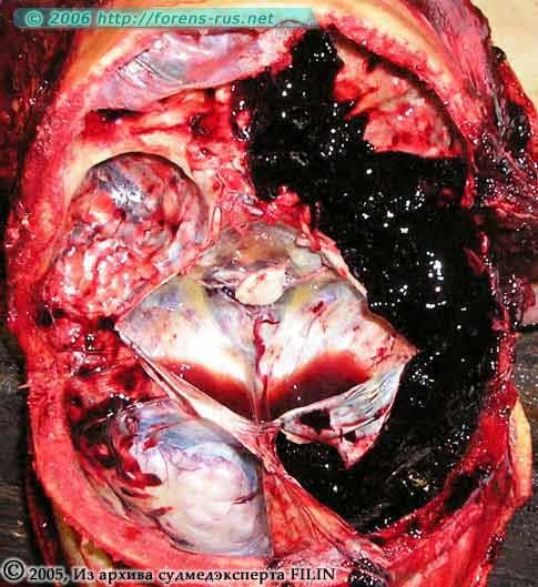 Субдуральная гематома в области правой половины ямок основания черепа