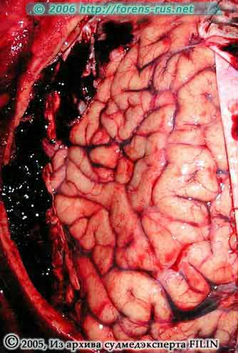 Конвекс мозга